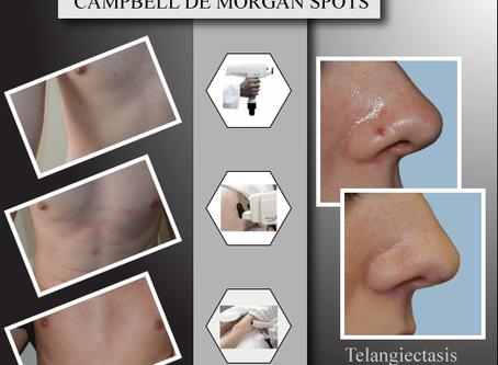 NdYAG laser for Campbell de Morgan Spots
