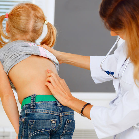 Scoliose idiopathique de l'enfant et de l'adolescent- Dépistage et surveillance