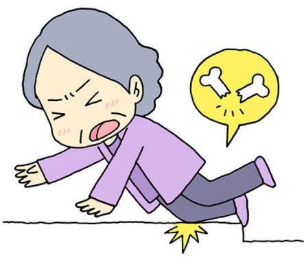Syndromes iatrogènes : les ostéopathies induites