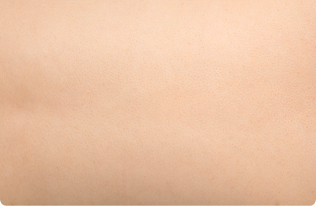 skin-texture-2x.png