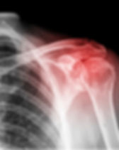 An inflammed shoulder from an old injury