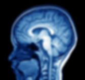 MRI scan of head