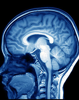 MRI scan of a brain