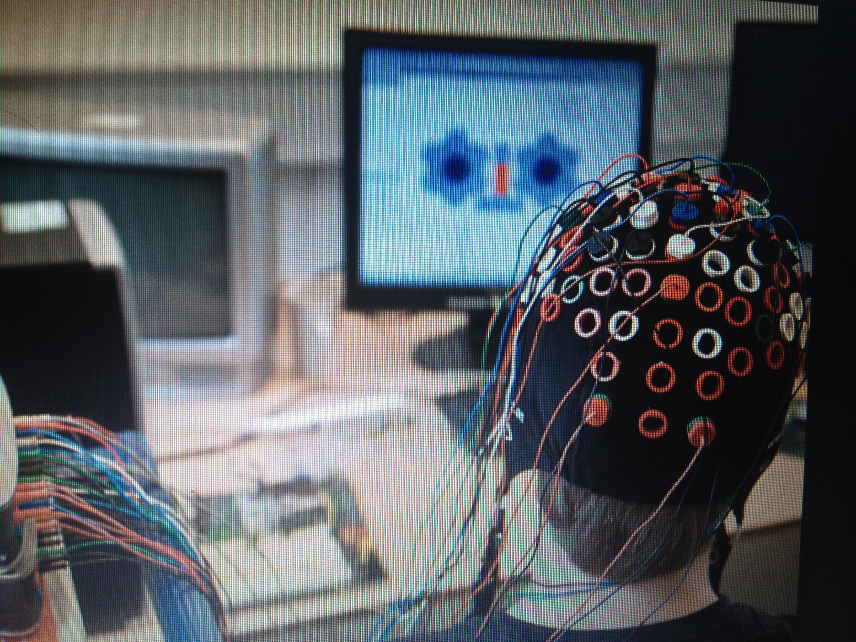 eeg- electroencefalografia