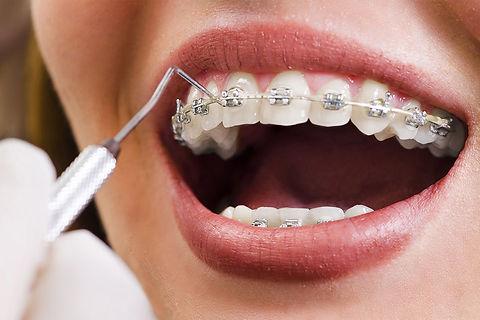 mysmile-orthodontie.jpg