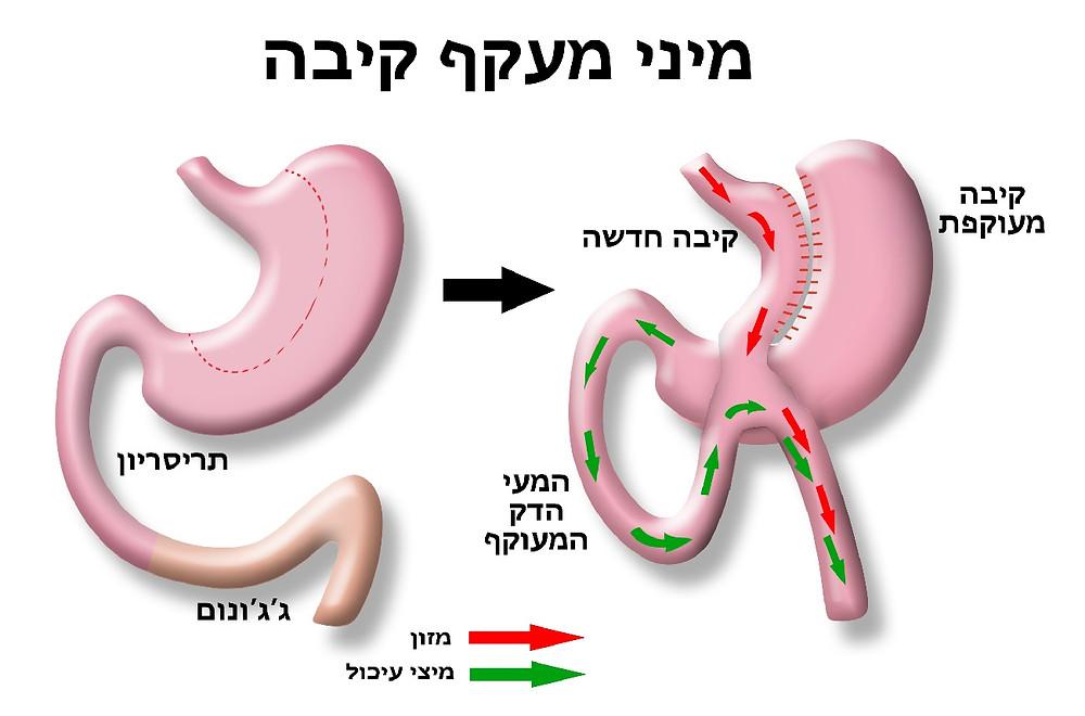 תזונה לאחר ניתוח מיני מעקף קיבה
