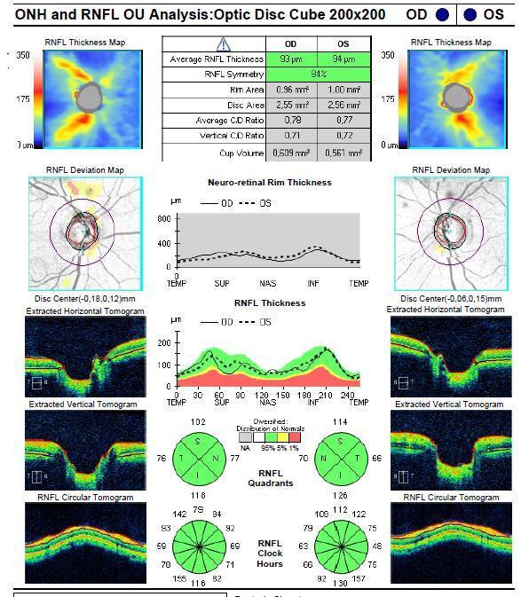 OCT glaucoma escavação acentuada com RNFL normal
