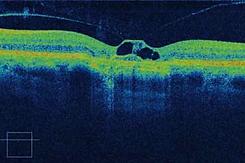 oct, tomografia de coerência, baixo custo