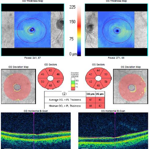 """Dentro do espectro do glaucoma, as células são as primeiras a serem afetadas pela doença; no estudo """"Ganglion Cells"""" é medida a espessura da camada destas fibras na região da mácula."""