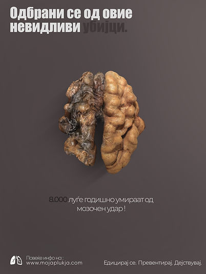 Campaign-mojaplukja_brain.jpg