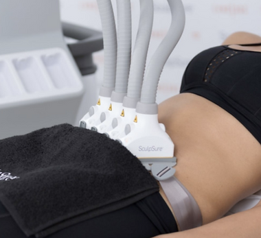 Sculpsure-reviews-1030x512.png