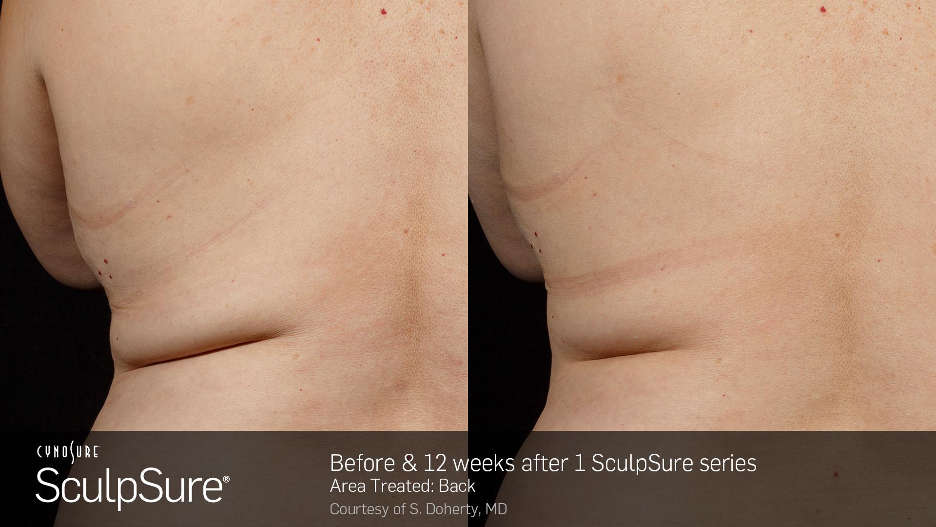 BA_SculpSure_S.Doherty_Back-2_1tx_12week