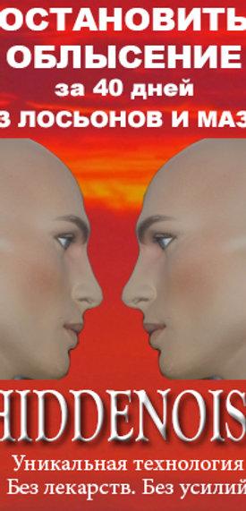 HIDDENOISE-СТОП ОБЛЫСЕНИЮ - остановить облысение и выпадение волос