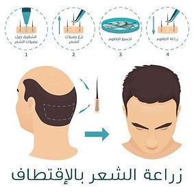 زراعة-الشعر-١.jpg