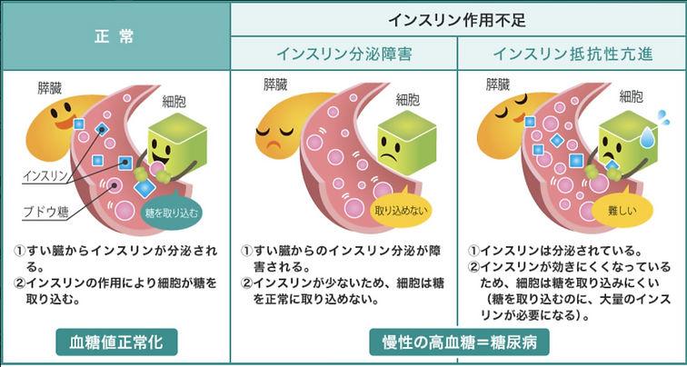 生活習慣病_糖尿病_1_edited.jpg