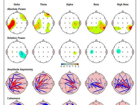 QEEG brainmap