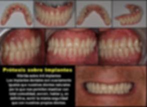 clinica dental santiponce.jpg