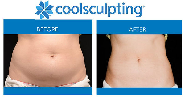CoolSculpting++Before+and+After+Photo11-