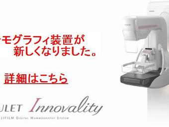 マンモグラフィ装置の更新