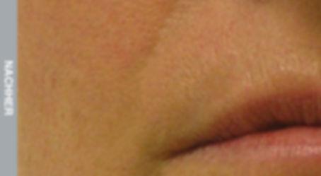 Resultate-Nasolabial-Falte-Nachher.jpg