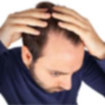 Anti-Haarausfall-2.jpg