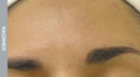 Resultate-Hyperpigmentation-Nachher.jpg