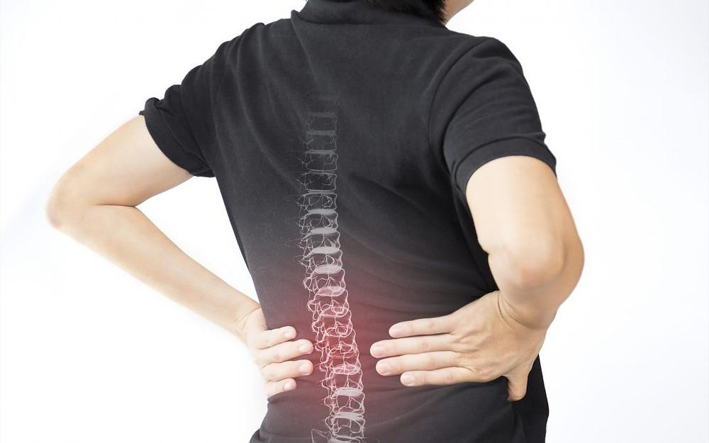 La Espondilitis Anquilosante y la quiropráctica