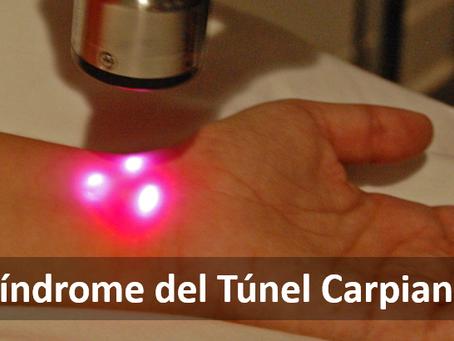 Quiropráctica, tratamiento efectivo para el Síndrome del Túnel Carpiano