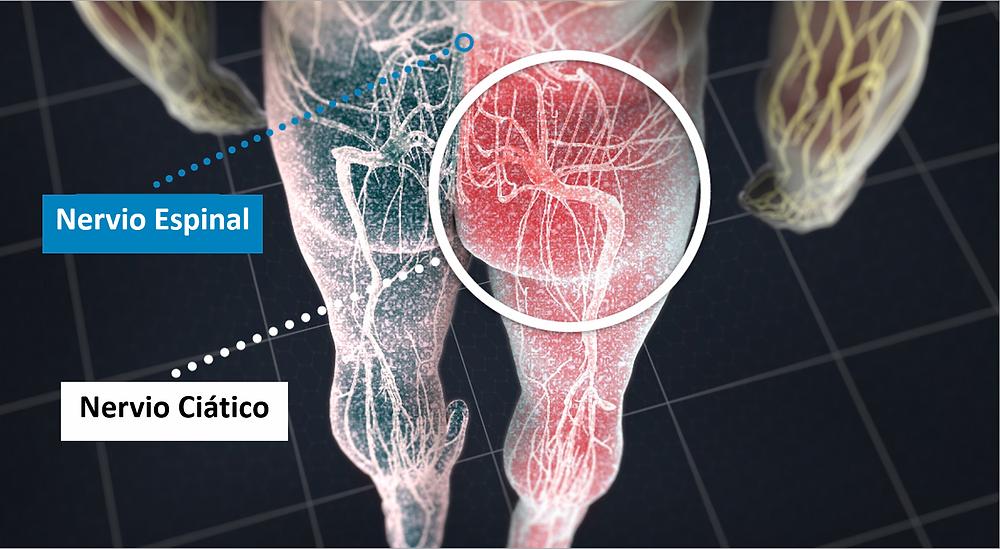 Terapia de laser nervio ciatico quiropractico san juan
