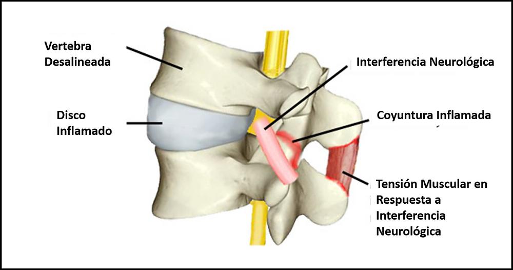 sub luxacion quiropractico san juan terapia laser