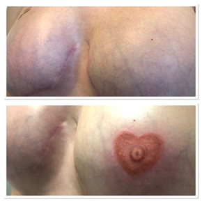 Areola Re-creation
