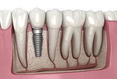 Dental-implant-illustration.jpg