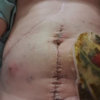 Colostomy reversal with temporary illiostomy