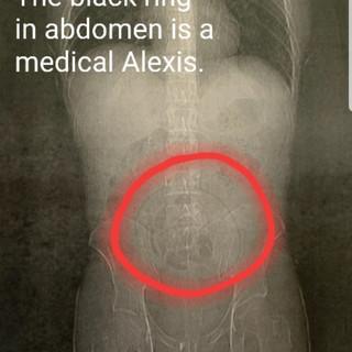 Medical misadventure