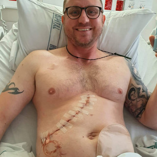 6 liver tumours removed