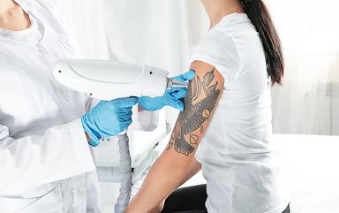 Woman undergoing laser tattoo removal procedure in salon.jpg