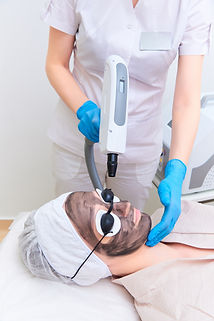 Procedure carbon facial peeling in the clinic of laser cosmetology..jpg