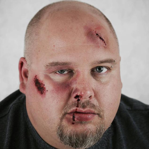 'Fresh Wounds' Photoshoot