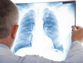 New Cancer Diagnosis Target is to be within four weeks