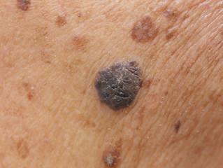 Skin cancer rise warning for over 55s