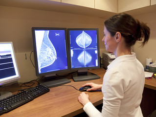 Breast cancer 'first response' at 10-year low