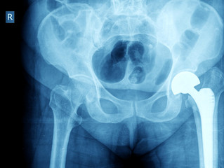 Rise in hip replacements for under 60s