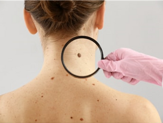 Skin cancer: How do I check my moles for signs of melanoma?