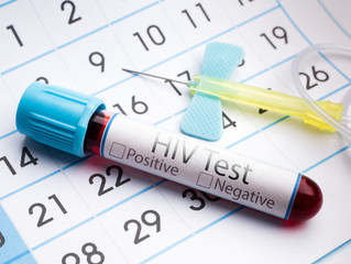 HIV home-test kit launched in England