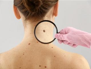 Skin cancer: How do I check my moles for signs of melanoma?