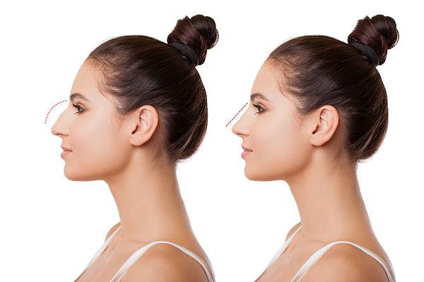 Comparison of Female Nose after Plastic