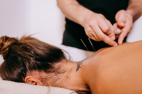 Acupuncture Initial Treatment Gift Certificate- approx. 90 min.