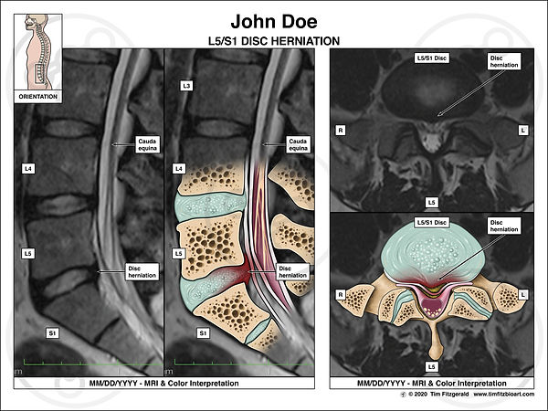 Interp of Disc Herniation