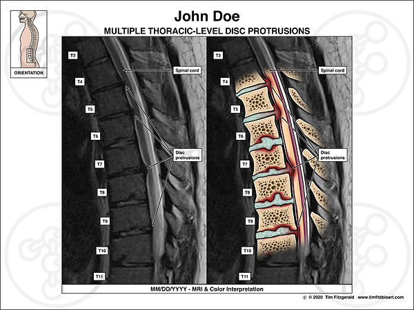 Interp of Disc Herniations