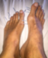 Jing-Well foot acupuncture gout treatment